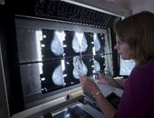 Woman studying mammograms