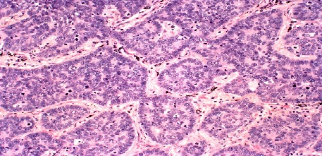 Large cell neuroendocrine