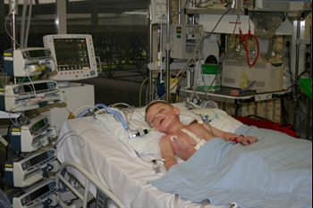 William in PICU after his surgery