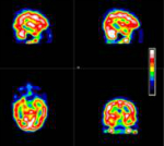 Typical 3D gamma camera images of cerebral perfusion displayed in pseudo colour