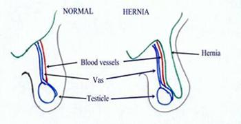 Inguinal hernia in boys
