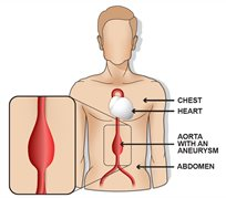 Aorta with aneurysm